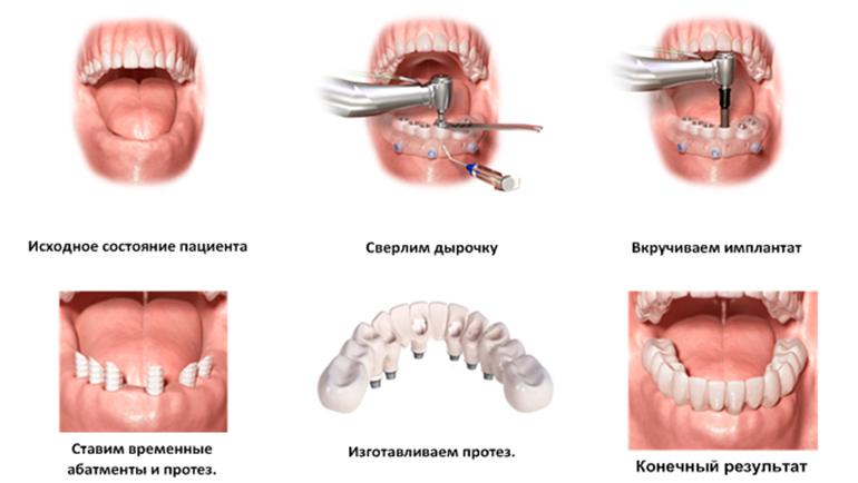 implantacija-1