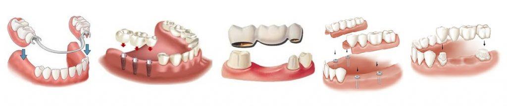zubnie-protezi-koronka-kaliningrad