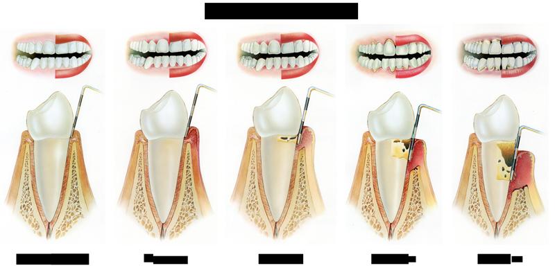 parodontit-delitsya-na-4-stadii