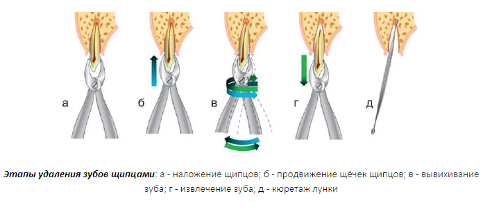 jetapy-udalenija-zubov-shhipcami